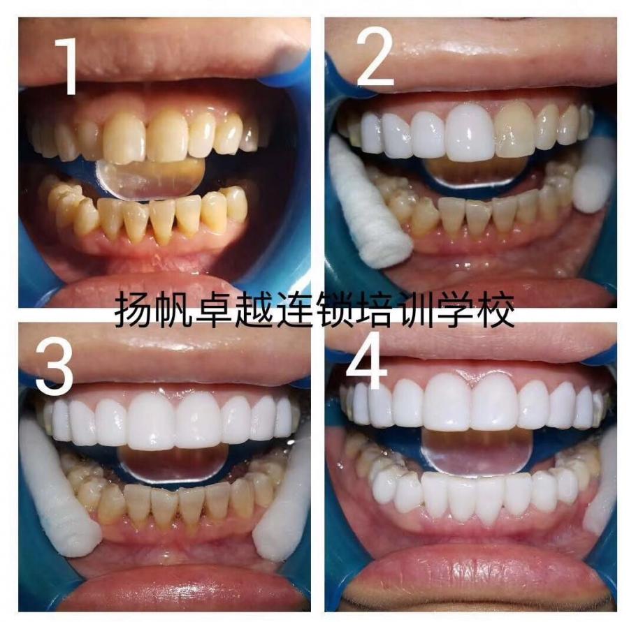 济南牙齿美白培训班  历下附近专业纳米美牙培训学校