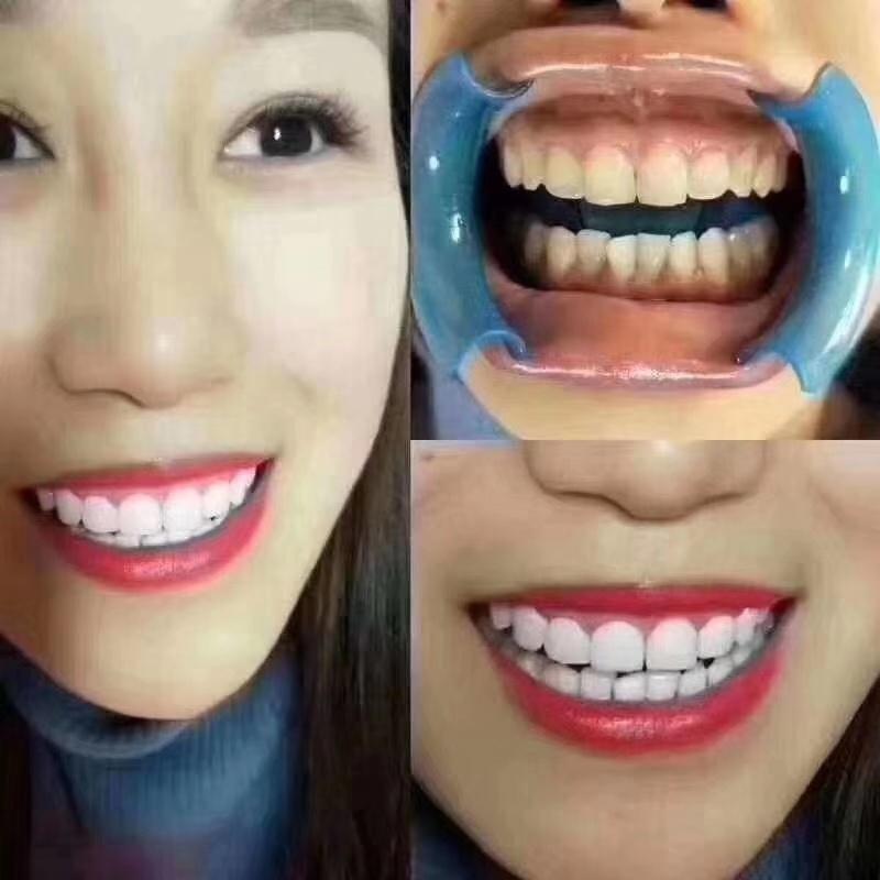 济南美牙技术培训班 济南历下冰瓷美牙技术培训学校